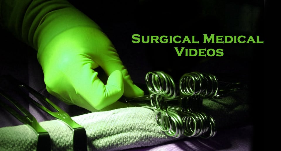 Surgical Medical Videos